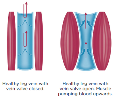 Diagram of healthy leg veins