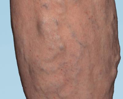 Varicose veins showing on skin